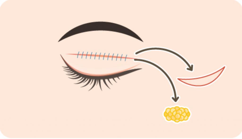還在用一般的雙眼皮膠?一覺醒來就有深邃大眼